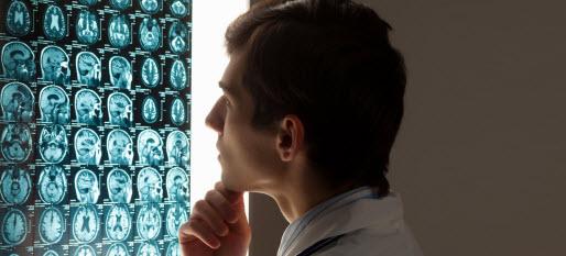 Neurology_CAsia